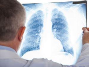 Diagnosis Pneumonia pada bayi