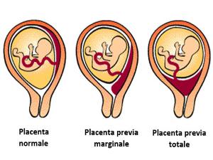 Gambar kondisi Plasenta Previa