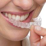 Kawat gigi lepasan