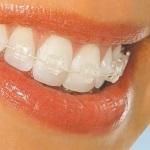 Kawat gigi transparan