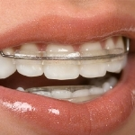 Kawat penstabil gigi