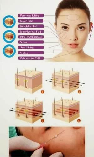 Metode tanam benang dibawah kulit