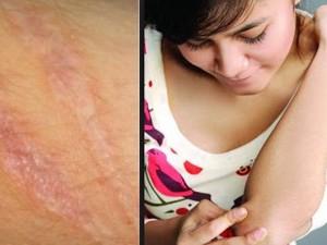 Cara alami menghilangkan bekas luka