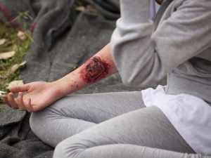 Merawat luka bakar dirumah